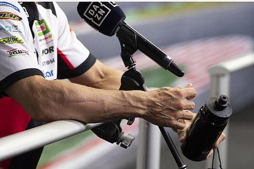 """Crutchlow: """"Most people wouldn't ride"""" with my arm issue"""