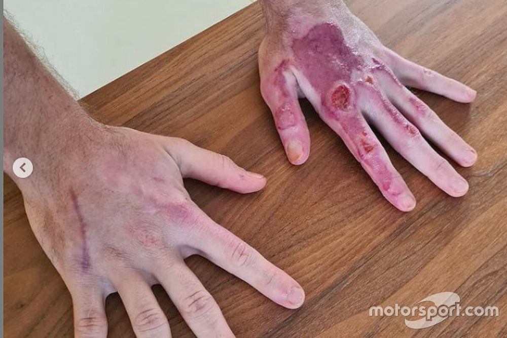 Grosjean: ecco com'era l'ustione alla mano sinistra