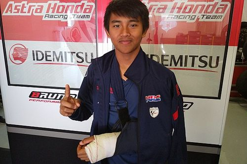 Mario SA cedera patah pergelangan tangan