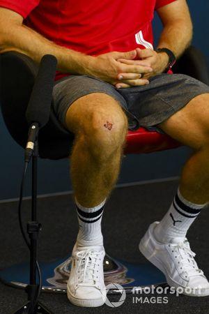 Knee of Sebastian Vettel, Ferrari in the press conference