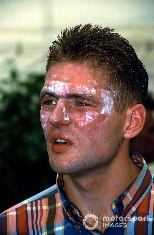 Jos Verstappen, Benetton, suffers from burns after his pit stop fire