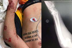 Il braccio infortunato di Ken Roczen