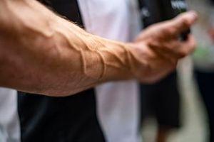 Le bras de Cal Crutchlow, LCR Honda Castrol