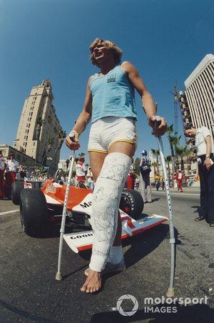 James Hunt con una pierna rota de un accidente de esquí