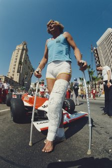 James Hunt with a broken leg from a skiing accident