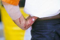 Verletzte Hand von Alex Criville, Repsol Honda Team