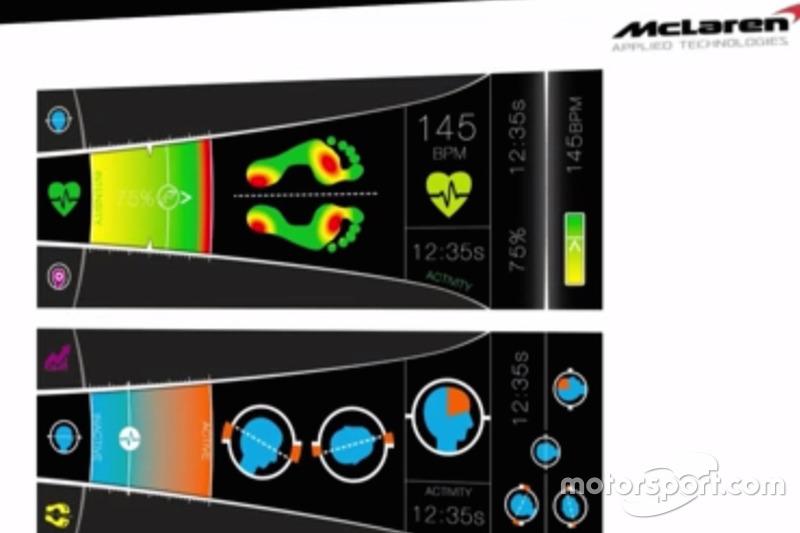 Display sensore biomedicale McLaren