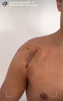La cicatrice della spalla operata di Marc Marquez