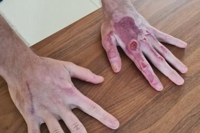 Ohne Handverband: Grosjean zeigt seine Wunden nach dem Feuerunfall