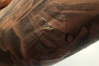 Hector Barbera posta la foto del suo braccio bruciato