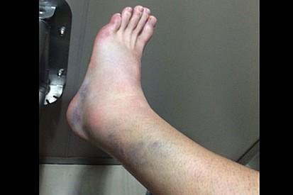 Ecco com'è ridotta la gamba di Casey Stoner