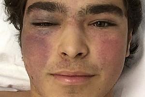 Pedro Piquet sigue internado en Goiania después de su accidente