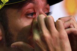 Conferencia de prensa pre-evento: Valentino Rossi, Fiat Yamaha Team