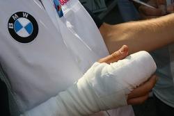 Sebastian Vettel después de que le fue colocado su dedo a base de suturas, después de perderlo duran