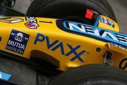 Nez de la Renault F1