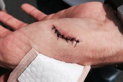 David Ragan'ın elindeki yaralanma ve dikişler