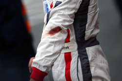 The cut arm of Andy Soucek in parc ferme